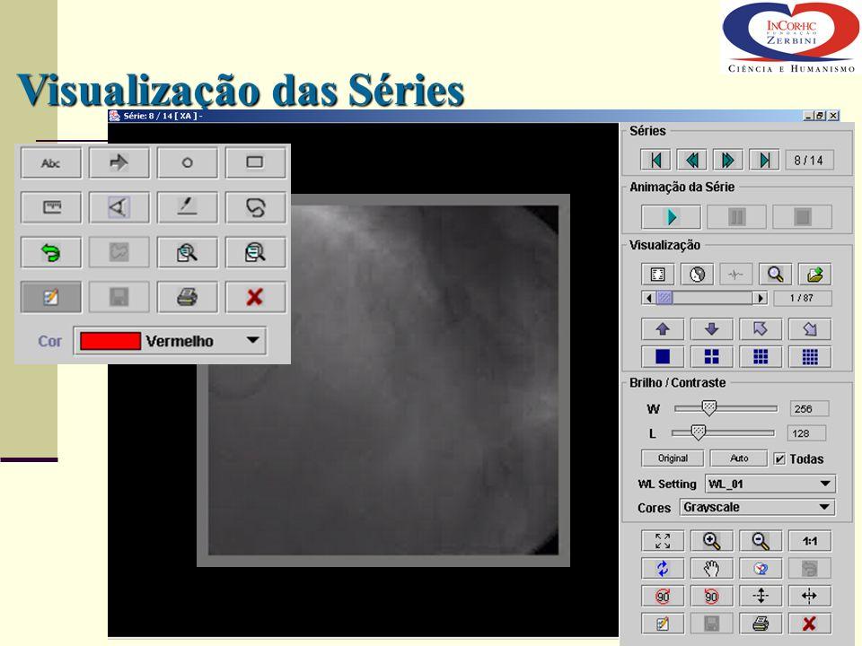 Visualização das Séries