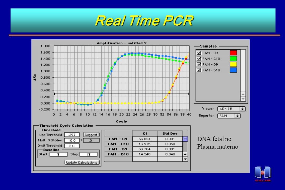 Real Time PCR DNA fetal no Plasma materno