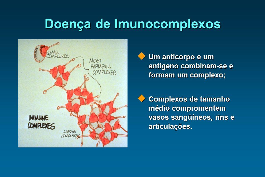 Doença de Imunocomplexos