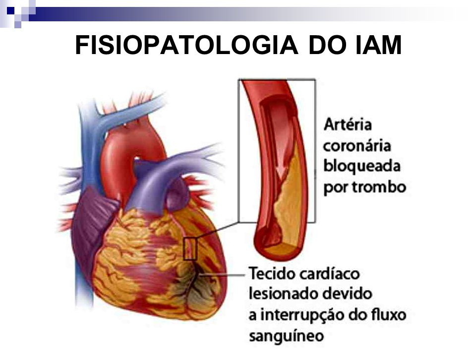FISIOPATOLOGIA DO IAM