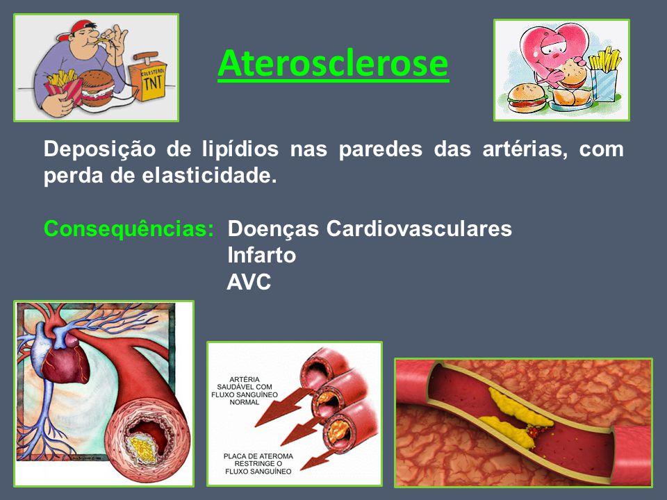 Aterosclerose Deposição de lipídios nas paredes das artérias, com perda de elasticidade. Consequências: Doenças Cardiovasculares.