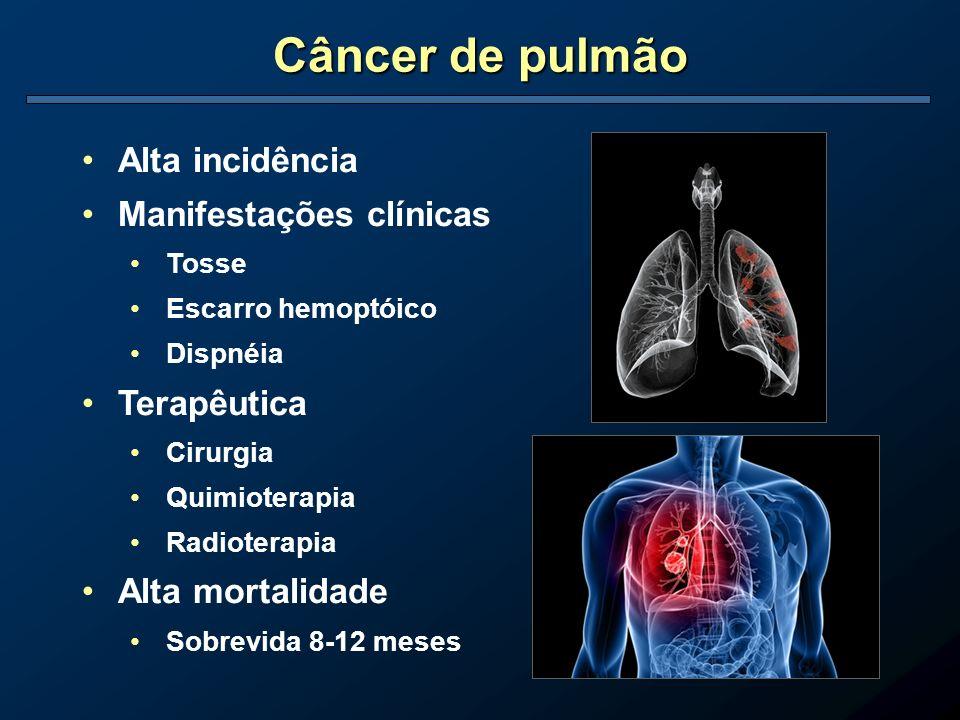 Câncer de pulmão Alta incidência Manifestações clínicas Terapêutica