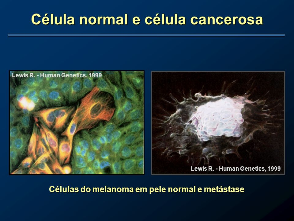Célula normal e célula cancerosa