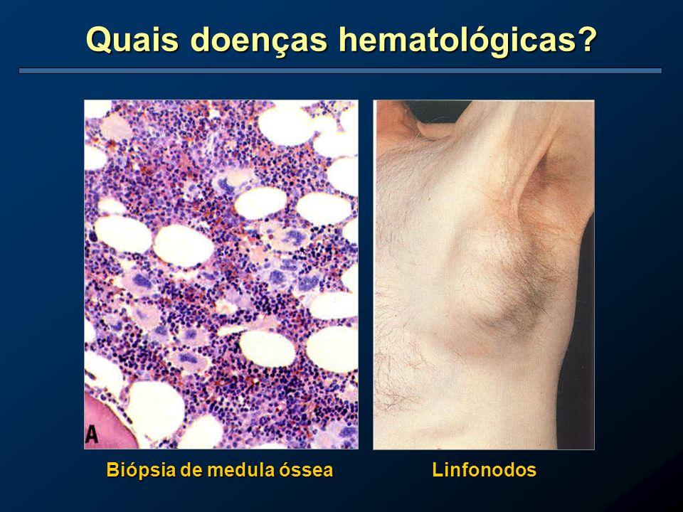 Quais doenças hematológicas Biópsia de medula óssea