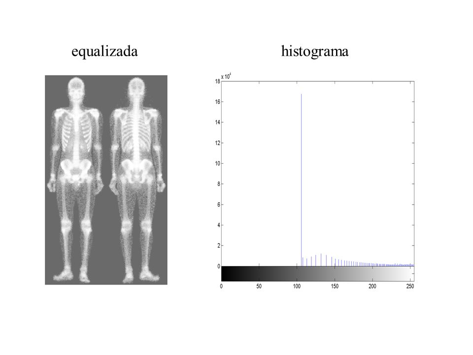 equalizada histograma