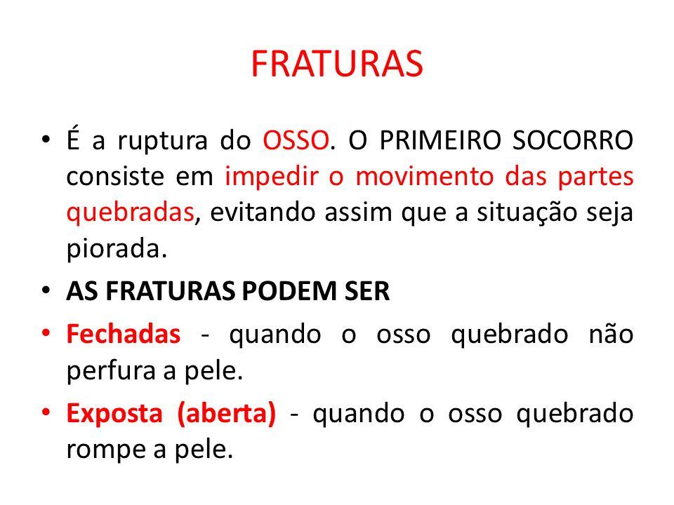 FRATURAS É a ruptura do OSSO. O PRIMEIRO SOCORRO consiste em impedir o movimento das partes quebradas, evitando assim que a situação seja piorada.