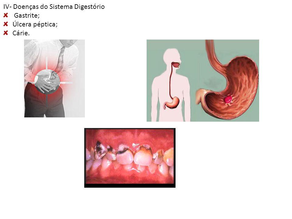 IV- Doenças do Sistema Digestório