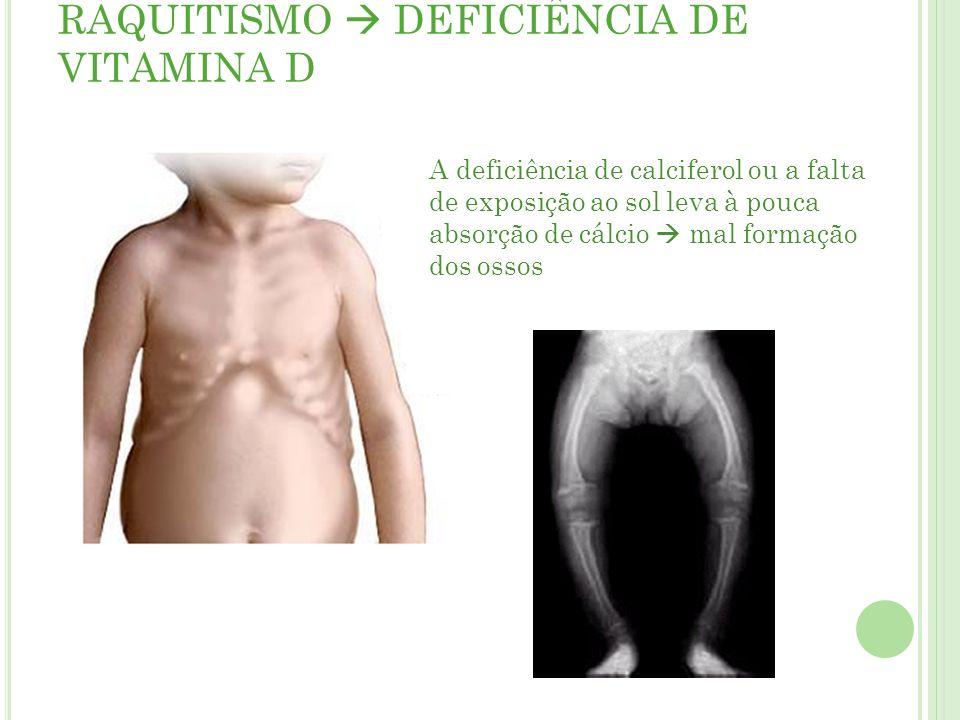 RAQUITISMO  DEFICIÊNCIA DE VITAMINA D