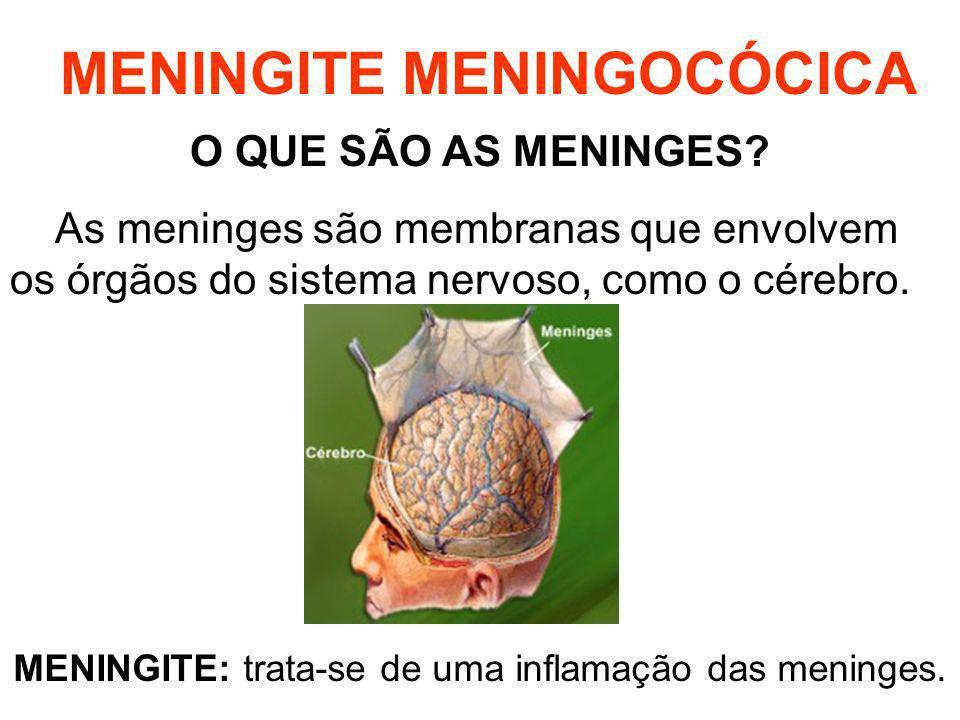 MENINGITE MENINGOCÓCICA