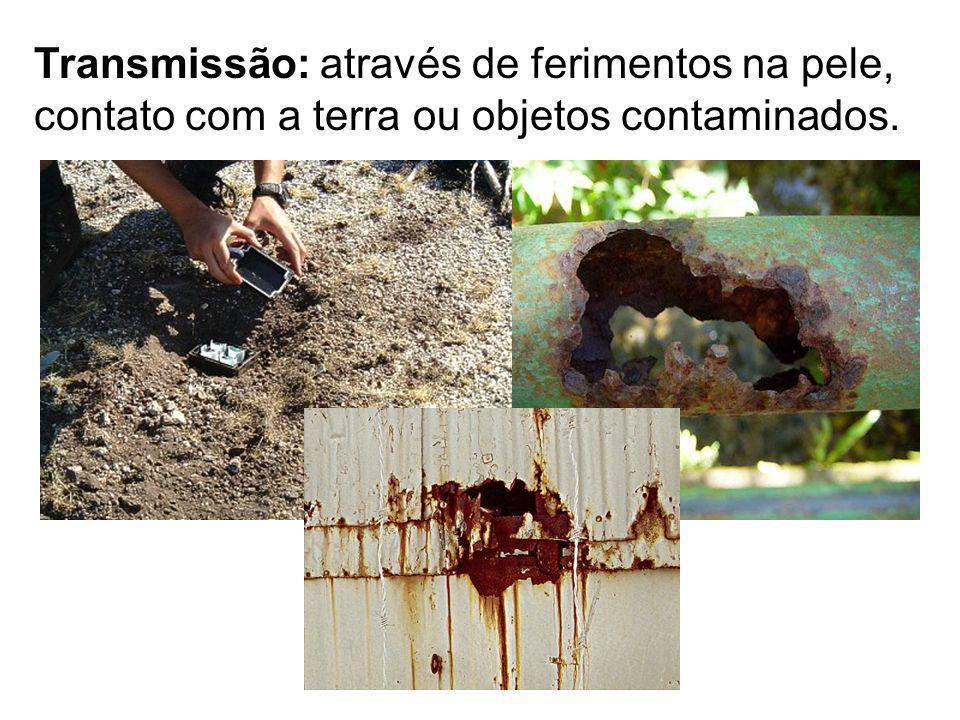 Transmissão: através de ferimentos na pele, contato com a terra ou objetos contaminados.