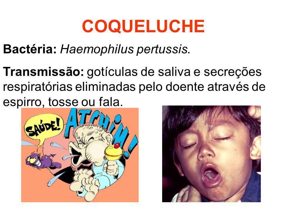 COQUELUCHE Bactéria: Haemophilus pertussis.