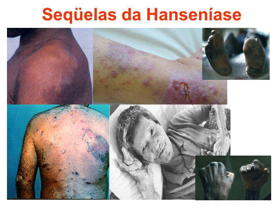 Seqüelas da Hanseníase