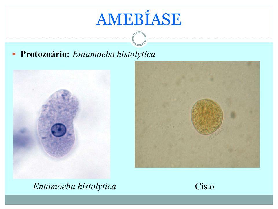 AMEBÍASE Protozoário: Entamoeba histolytica Entamoeba histolytica
