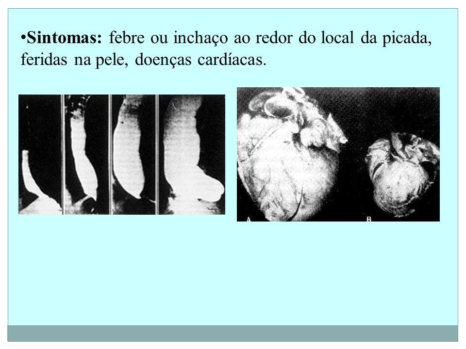 Sintomas: febre ou inchaço ao redor do local da picada, feridas na pele, doenças cardíacas.