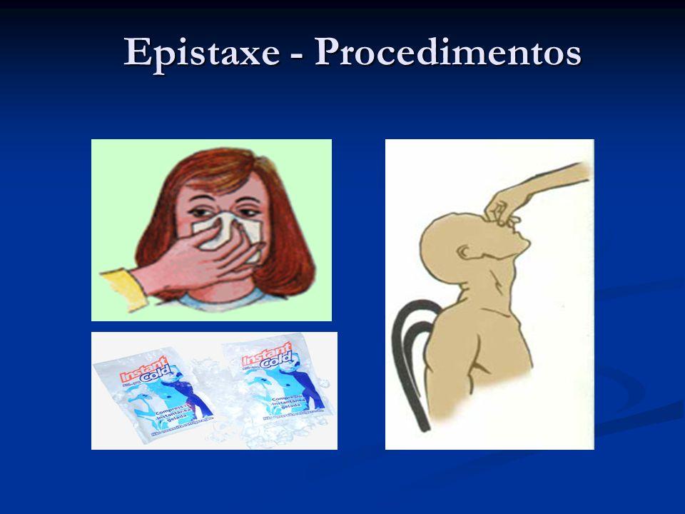 Epistaxe - Procedimentos