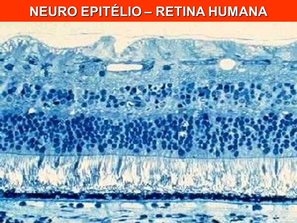 NEURO EPITÉLIO – RETINA HUMANA