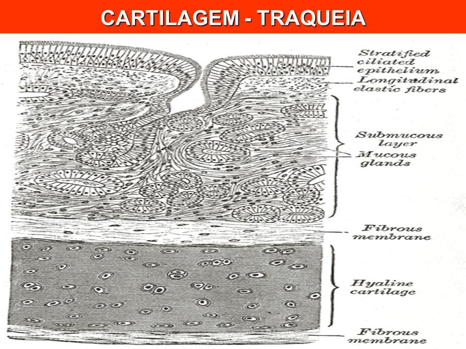 CARTILAGEM - TRAQUEIA