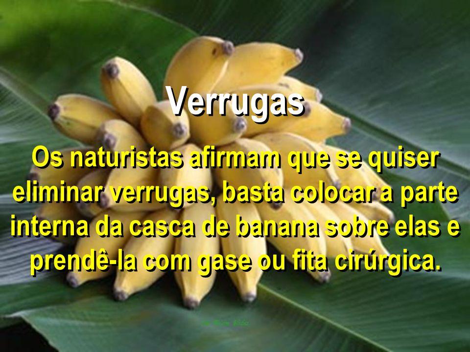 Verrugas Os naturistas afirmam que se quiser eliminar verrugas, basta colocar a parte interna da casca de banana sobre elas e prendê-la com gase ou fita cirúrgica.