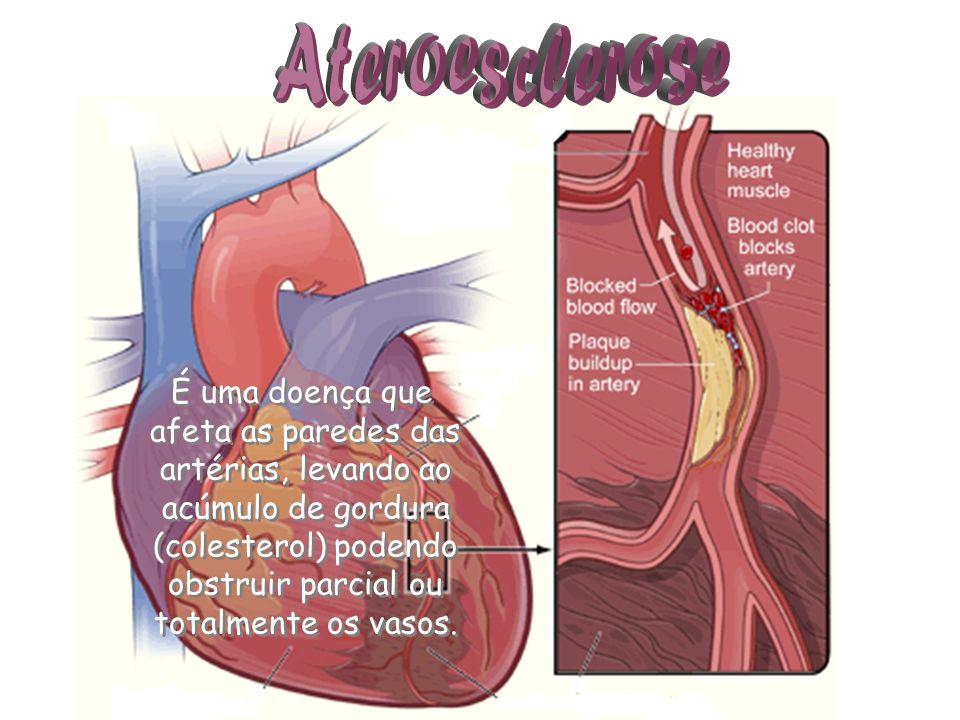 Ateroesclerose