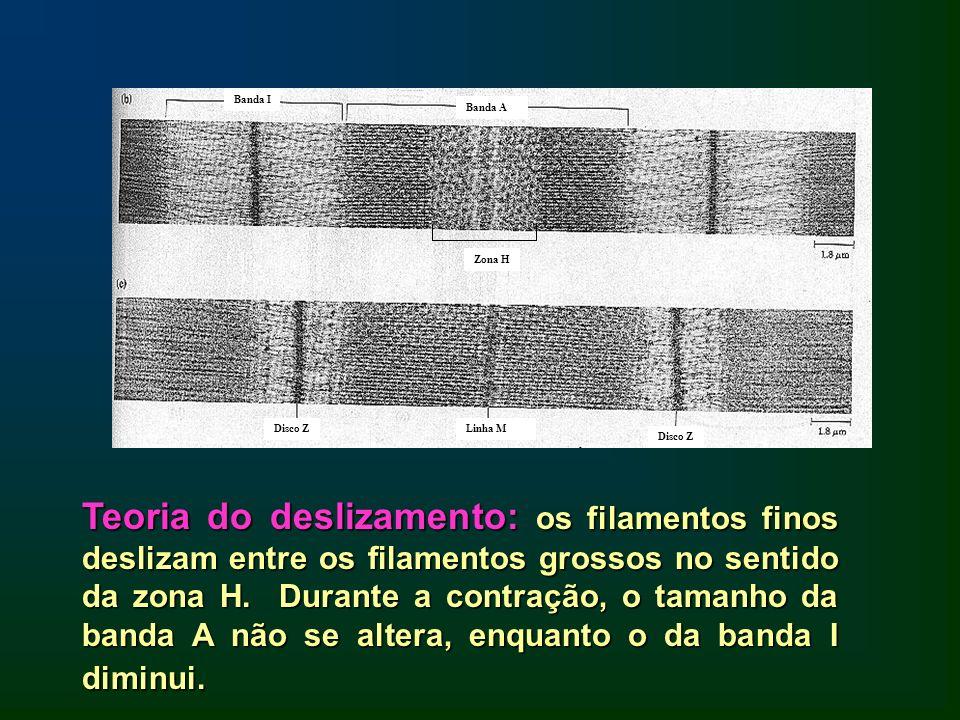 Banda I Banda A. Zona H. Disco Z. Linha M. Disco Z.