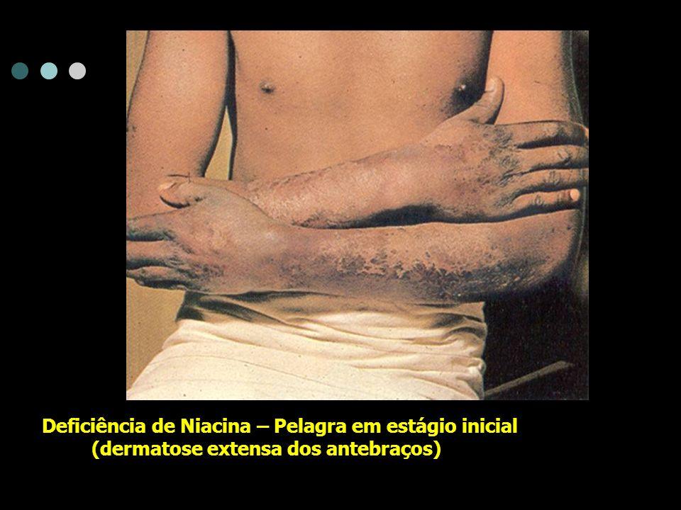 Deficiência de Niacina – Pelagra em estágio inicial