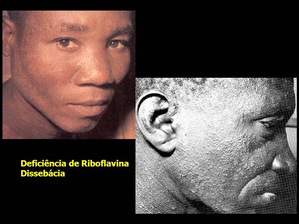 Deficiência de Riboflavina