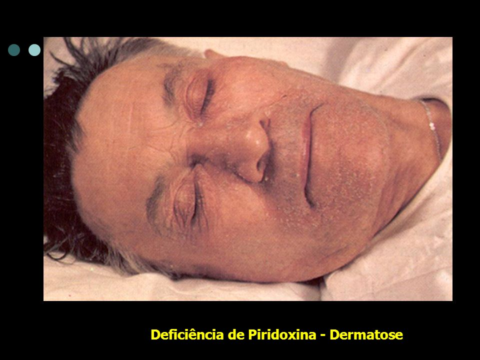 Deficiência de Piridoxina - Dermatose