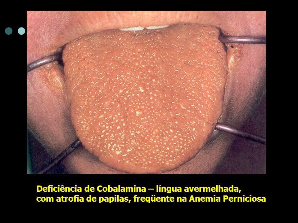 Deficiência de Cobalamina – língua avermelhada,