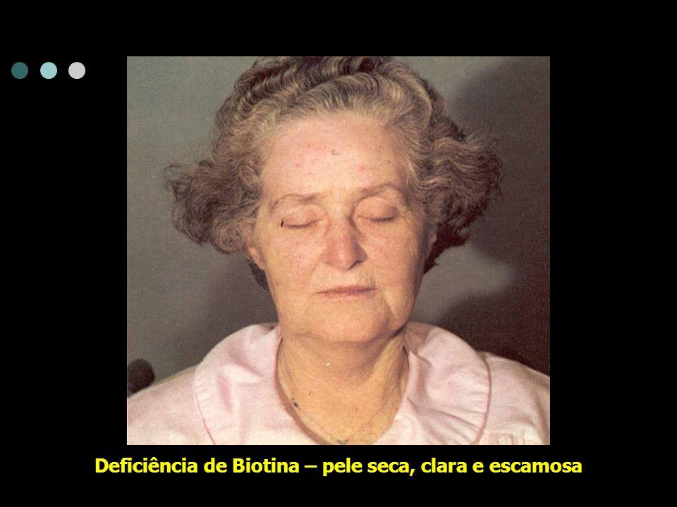 Deficiência de Biotina – pele seca, clara e escamosa