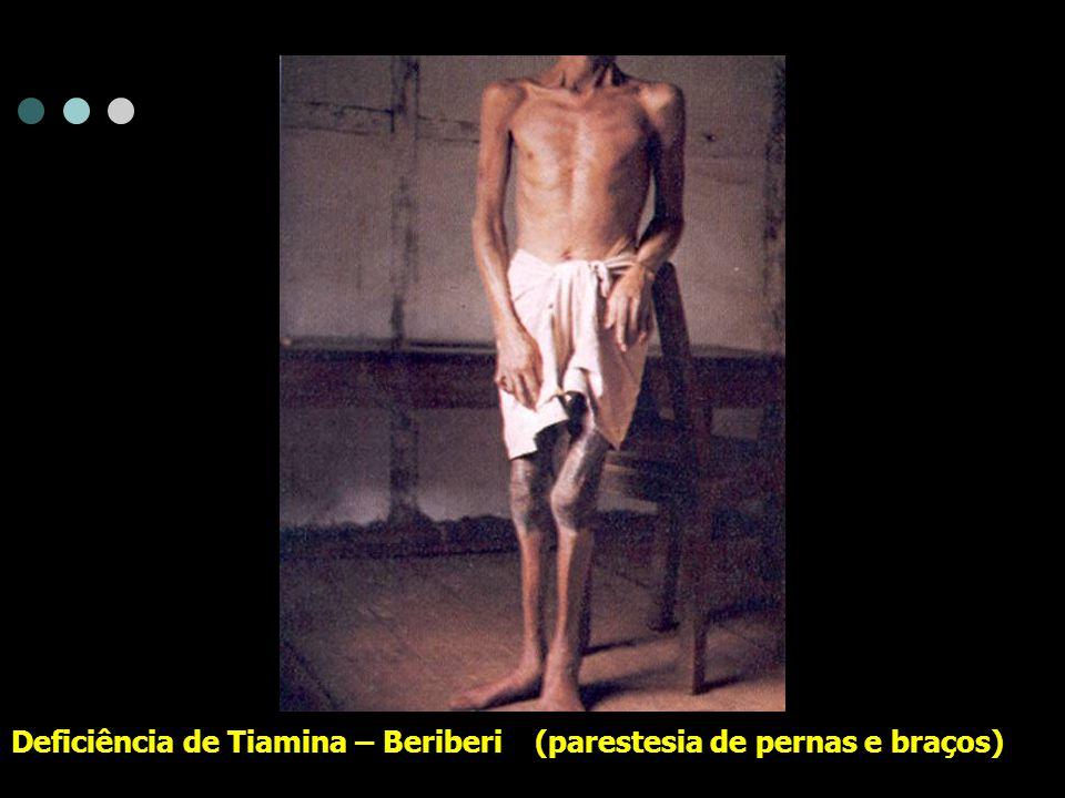 Deficiência de Tiamina – Beriberi (parestesia de pernas e braços)