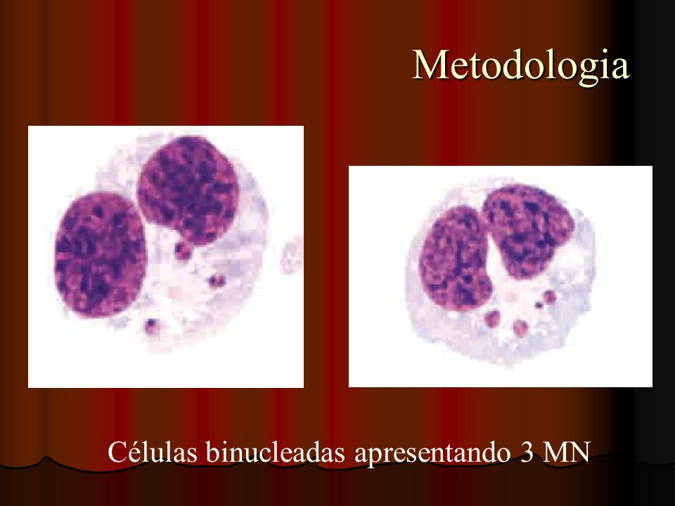 Metodologia Células binucleadas apresentando 3 MN