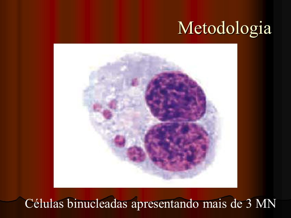 Células binucleadas apresentando mais de 3 MN
