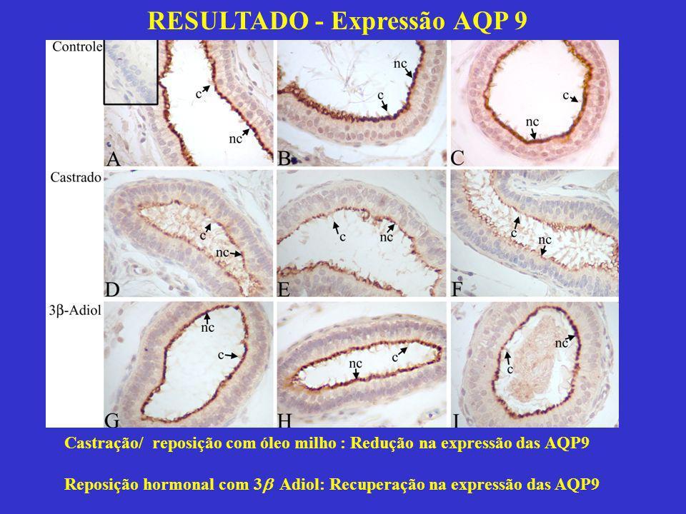 RESULTADO - Expressão AQP 9