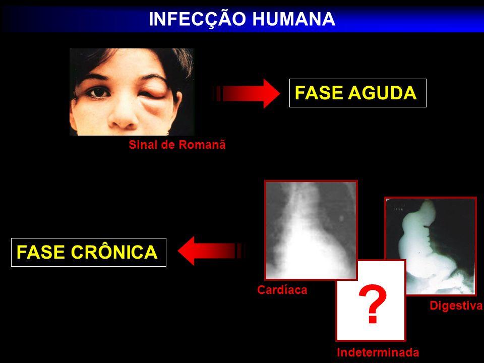 INFECÇÃO HUMANA FASE AGUDA FASE CRÔNICA Sinal de Romanã Cardíaca