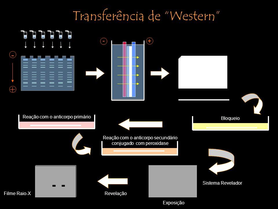 Transferência de Western
