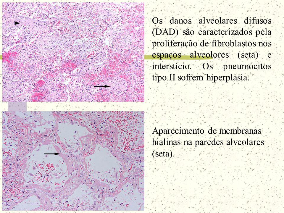 Os danos alveolares difusos (DAD) são caracterizados pela proliferação de fibroblastos nos espaços alveolores (seta) e interstício. Os pneumócitos tipo II sofrem hiperplasia.