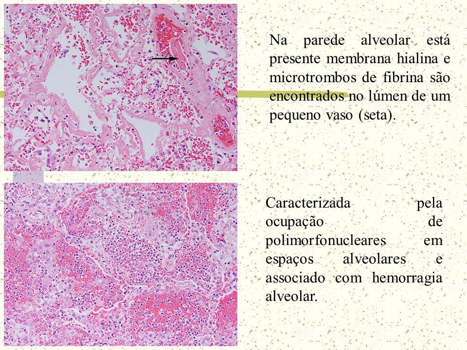 Na parede alveolar está presente membrana hialina e microtrombos de fibrina são encontrados no lúmen de um pequeno vaso (seta).