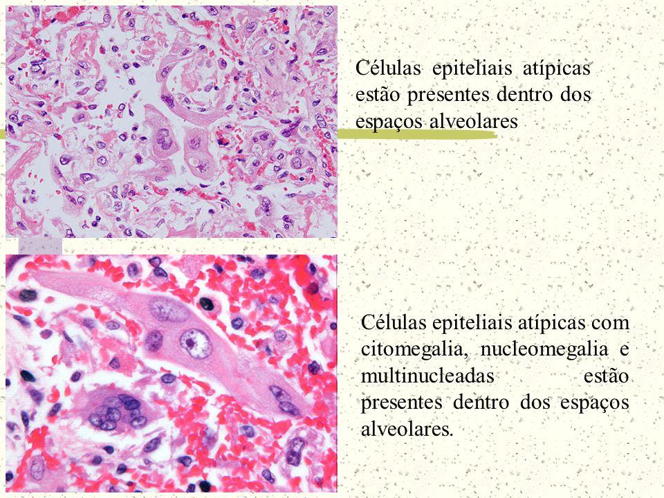Células epiteliais atípicas estão presentes dentro dos espaços alveolares