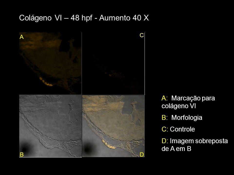 Colágeno VI – 48 hpf - Aumento 40 X