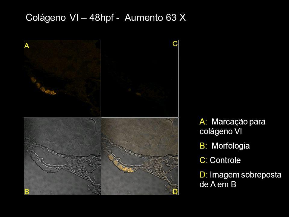 Colágeno VI – 48hpf - Aumento 63 X