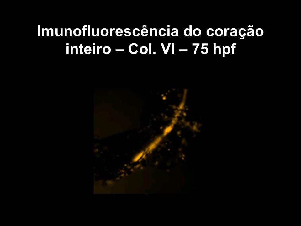 Imunofluorescência do coração inteiro – Col. VI – 75 hpf