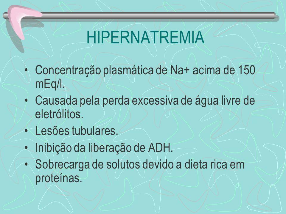 HIPERNATREMIA Concentração plasmática de Na+ acima de 150 mEq/l.