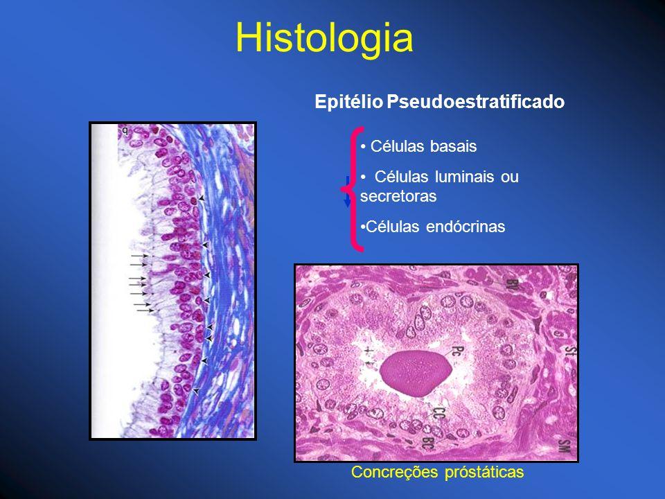 Epitélio Pseudoestratificado