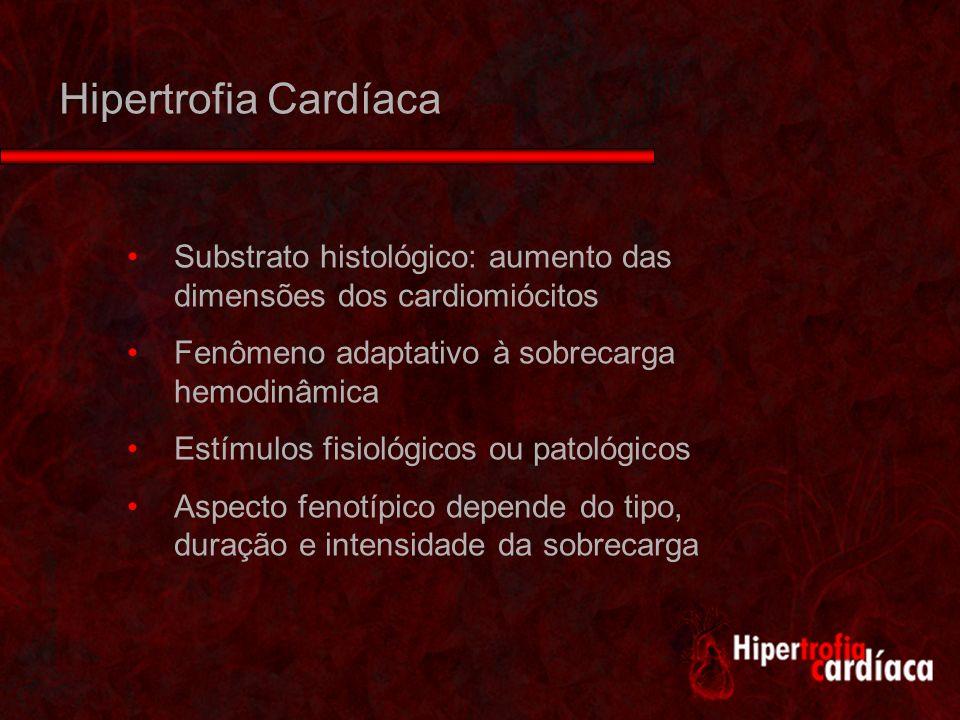 Hipertrofia Cardíaca Substrato histológico: aumento das dimensões dos cardiomiócitos. Fenômeno adaptativo à sobrecarga hemodinâmica.