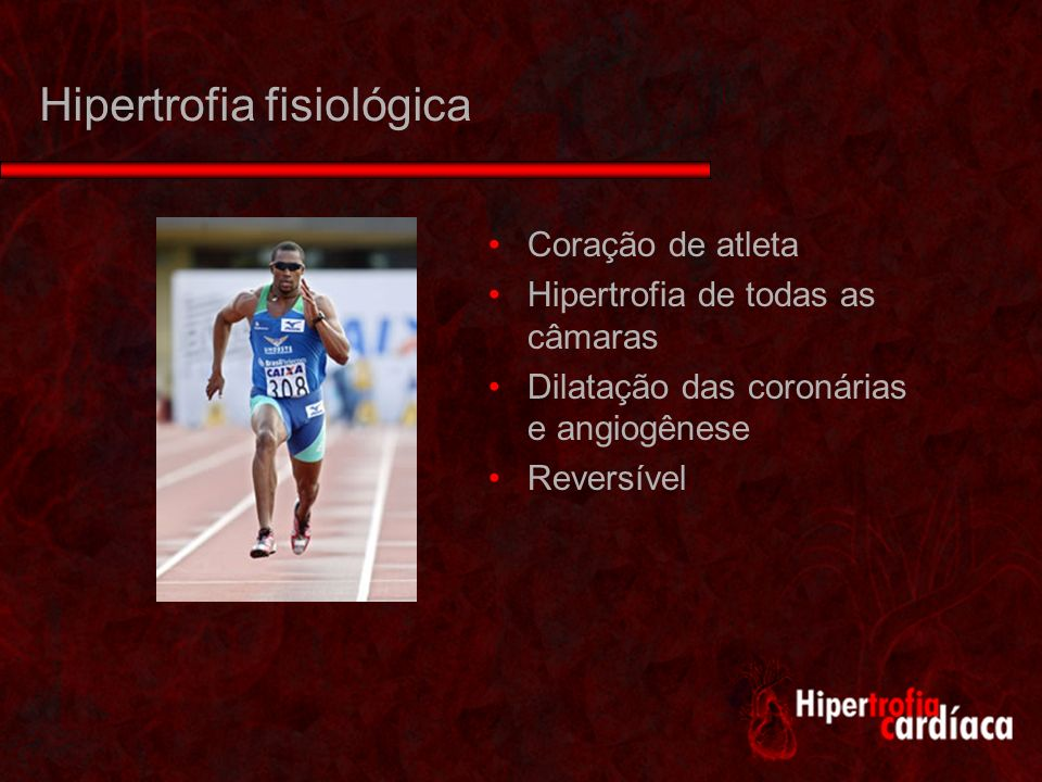 Hipertrofia fisiológica