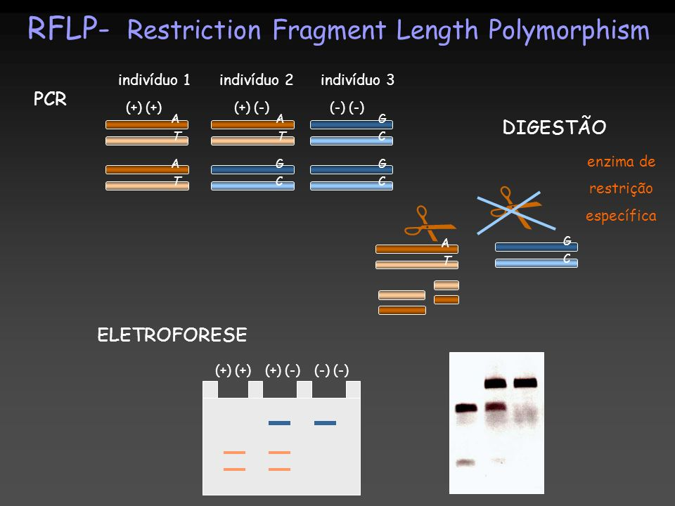   RFLP- Restriction Fragment Length Polymorphism PCR DIGESTÃO
