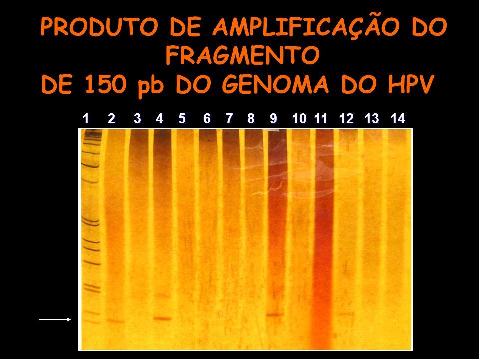 PRODUTO DE AMPLIFICAÇÃO DO FRAGMENTO DE 150 pb DO GENOMA DO HPV