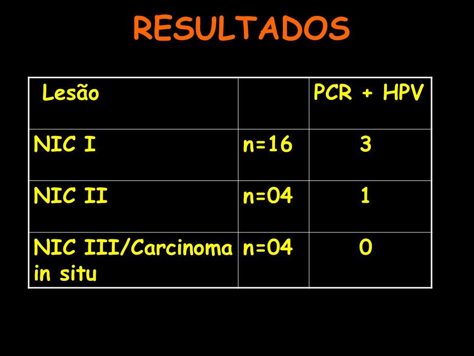 RESULTADOS Lesão PCR + HPV NIC I n=16 3 NIC II n=04 1