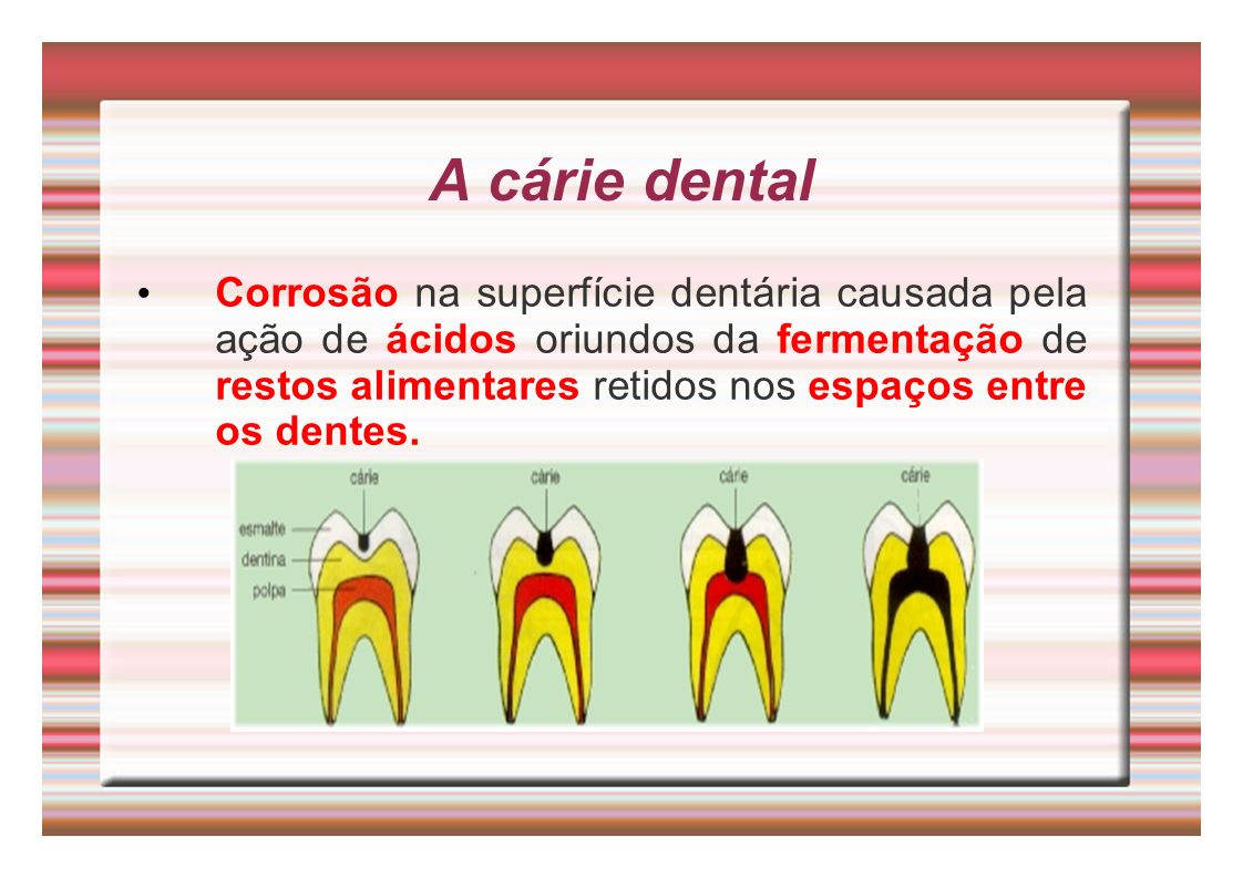 A cárie dental