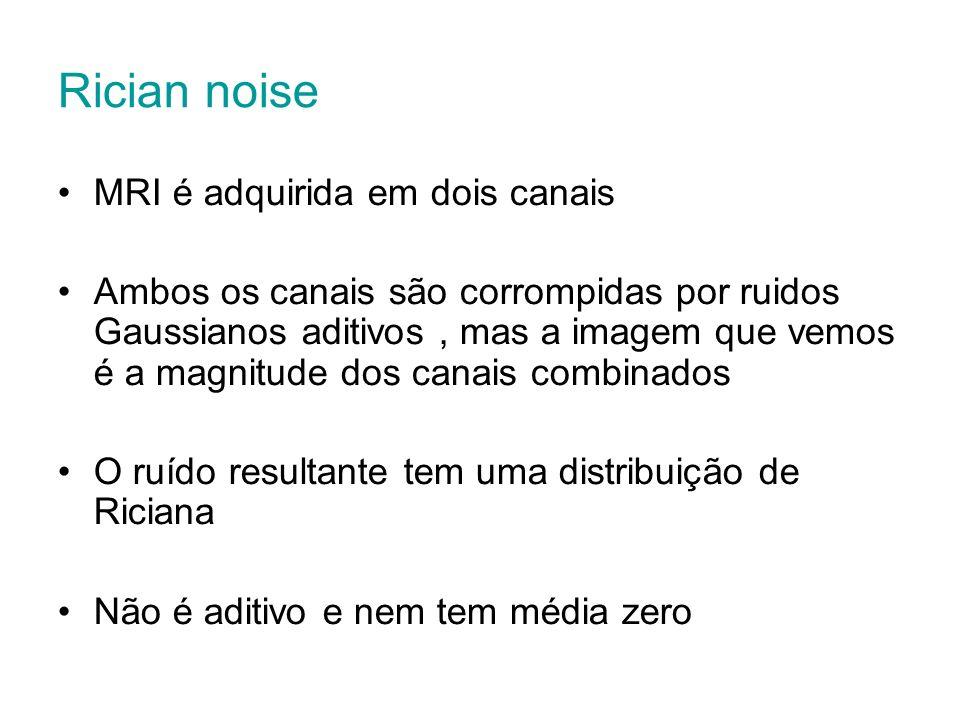 Rician noise MRI é adquirida em dois canais